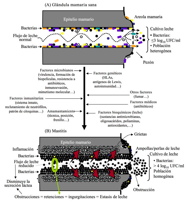 Mastitis subaguda - Mastitis subclínica
